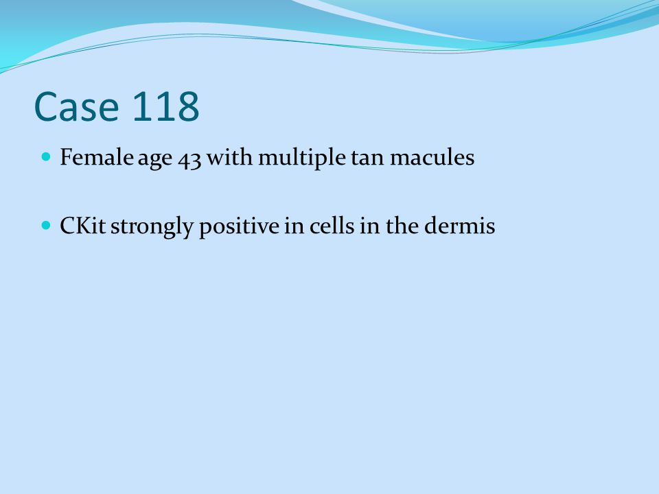 Case 118 Female age 43 with multiple tan macules CKit strongly positive in cells in the dermis