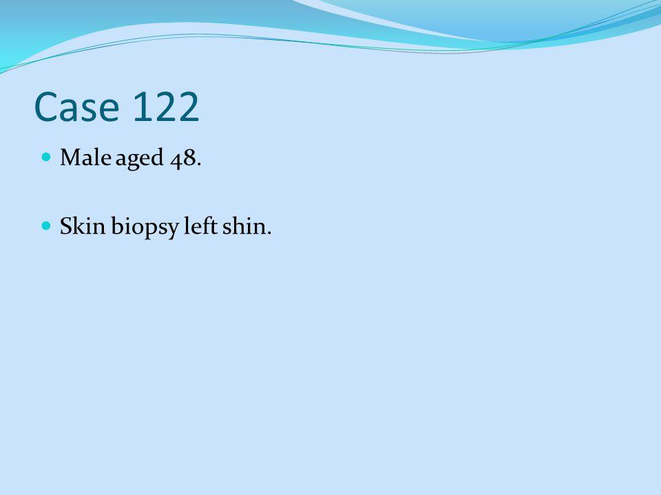 Case 122 Male aged 48. Skin biopsy left shin.
