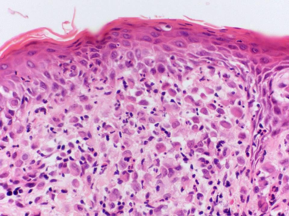Preferred diagnosis: Langerhan's cell histiocytosis