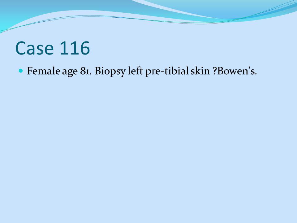 Case 116 Female age 81. Biopsy left pre-tibial skin ?Bowen's.