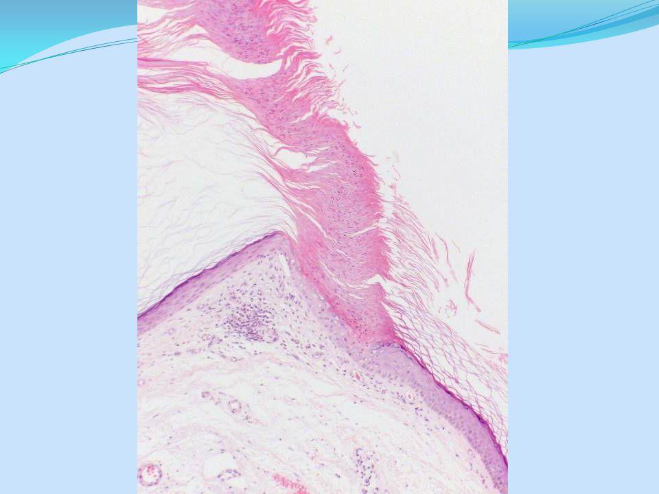 Preferred diagnosis: Spiradenoma