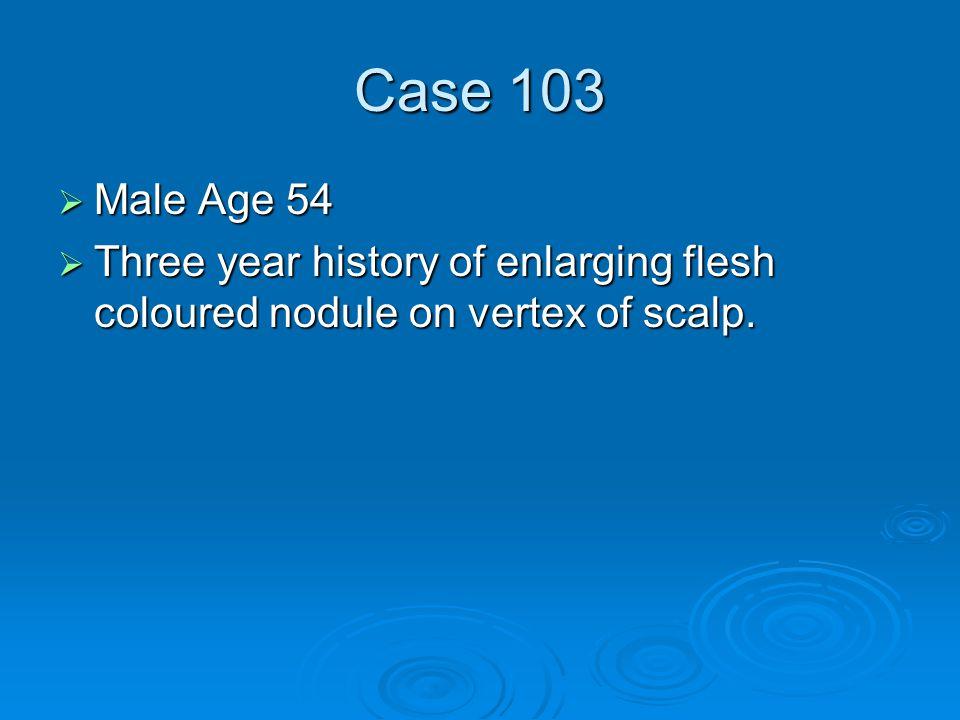 Case 103  Male Age 54  Three year history of enlarging flesh coloured nodule on vertex of scalp.