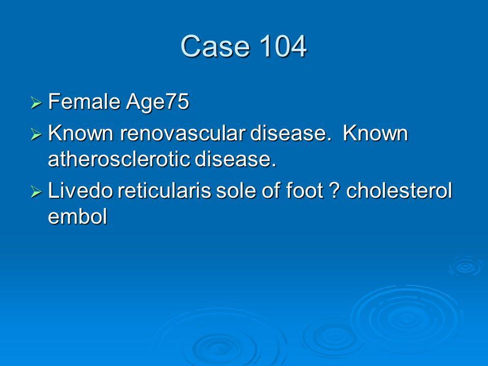 Case 104  Female Age75  Known renovascular disease.