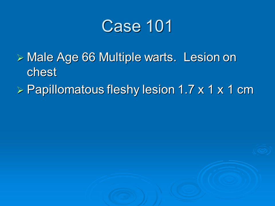 Case 101  Male Age 66 Multiple warts. Lesion on chest  Papillomatous fleshy lesion 1.7 x 1 x 1 cm