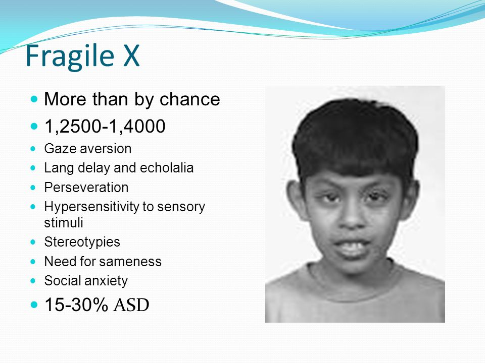 Fragile X More than by chance 1,2500-1,4000 Gaze aversion Lang delay and echolalia Perseveration Hypersensitivity to sensory stimuli Stereotypies Need for sameness Social anxiety 15-30% ASD