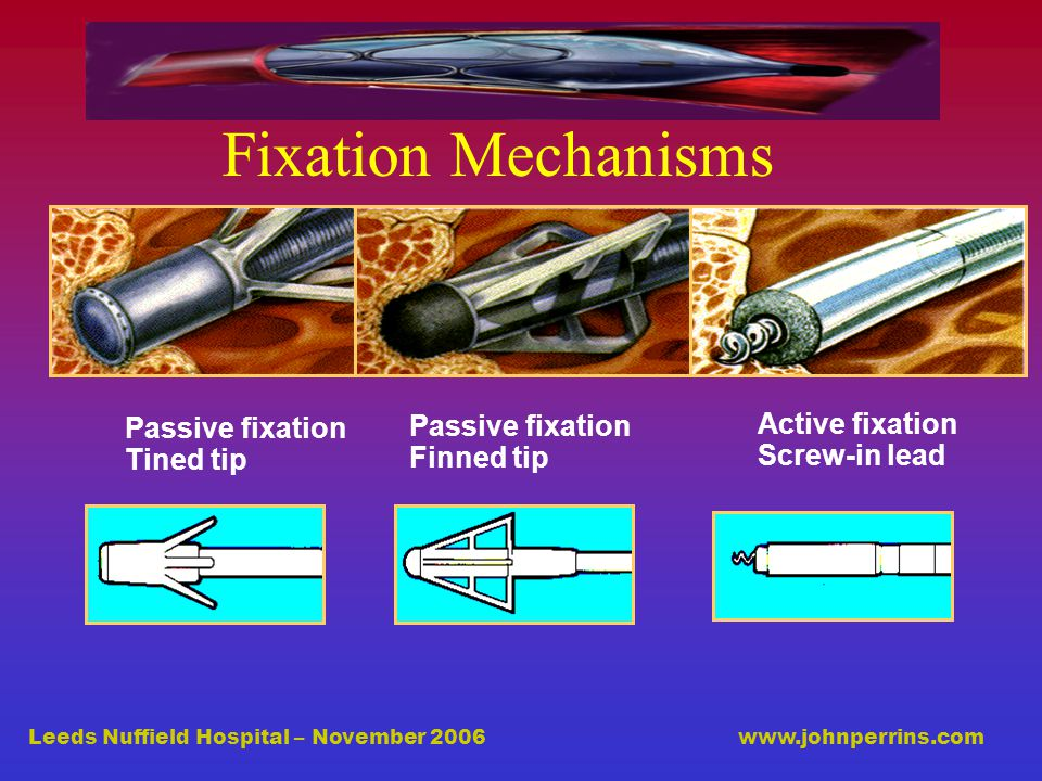 Leeds Nuffield Hospital – November 2006 www.johnperrins.com Fixation Mechanisms Active fixation Screw-in lead Passive fixation Tined tip Passive fixation Finned tip
