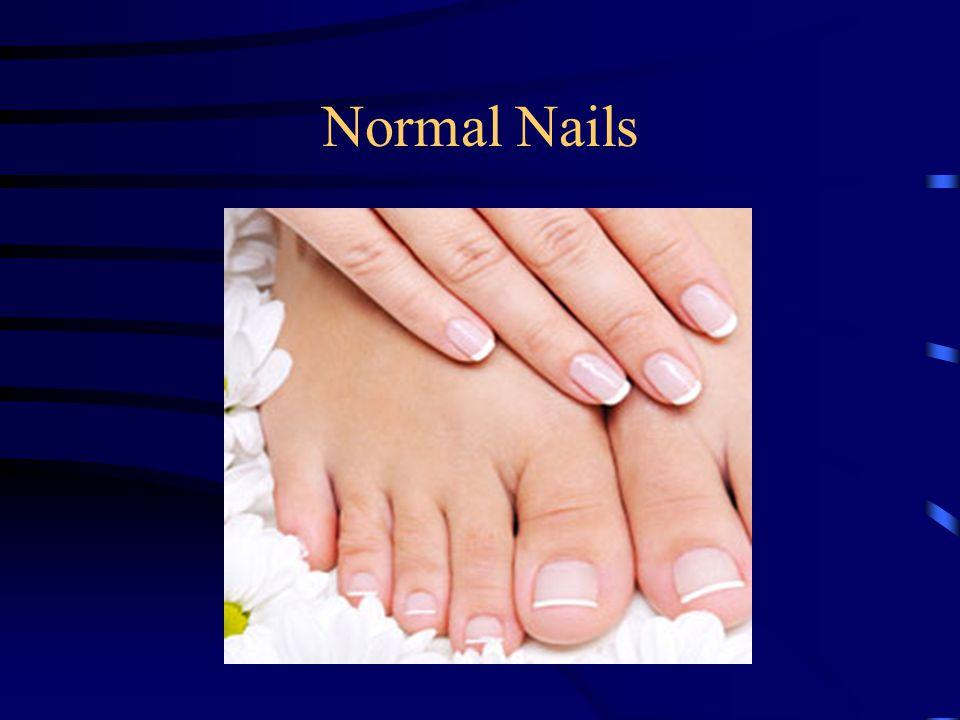 Normal Nails