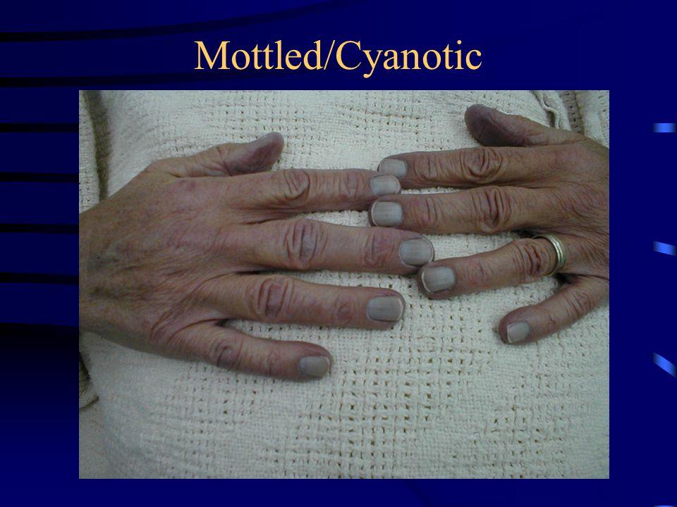 Mottled/Cyanotic