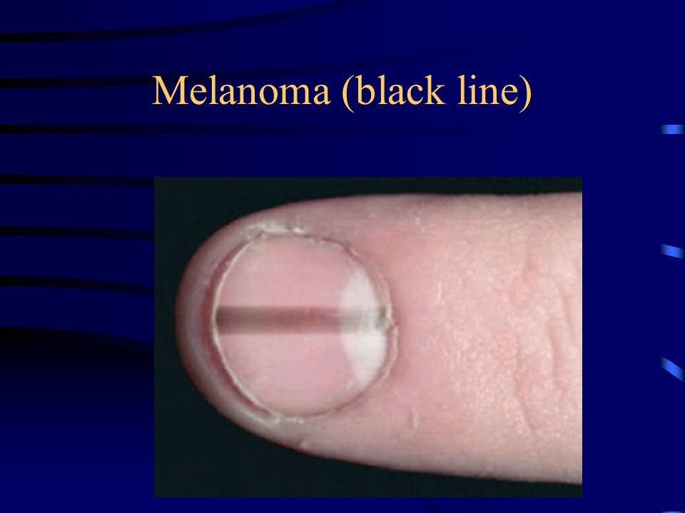 Melanoma (black line)