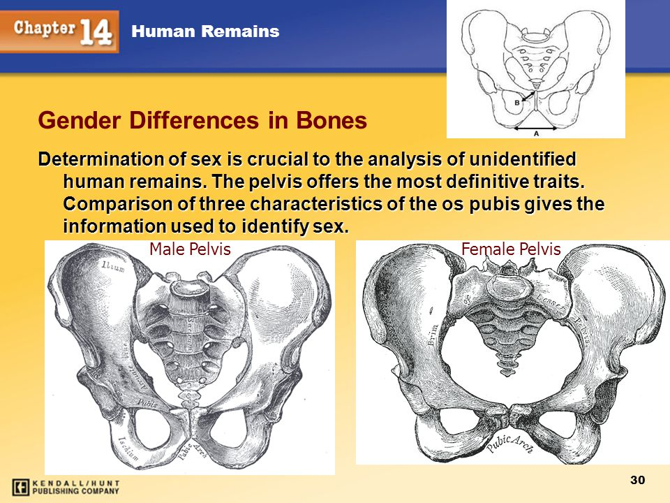 Human Remains 30 Gender Differences in Bones Determination of sex is crucial to the analysis of unidentified human remains. The pelvis offers the most