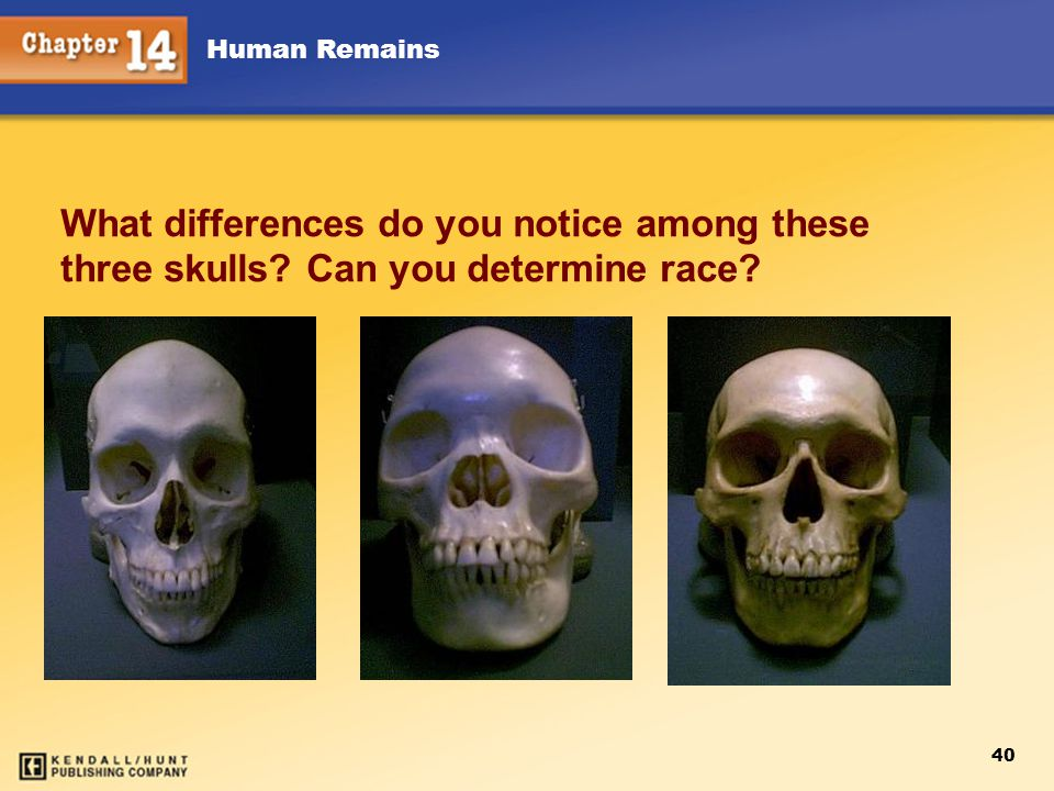 Human Remains 40 What differences do you notice among these three skulls? Can you determine race?