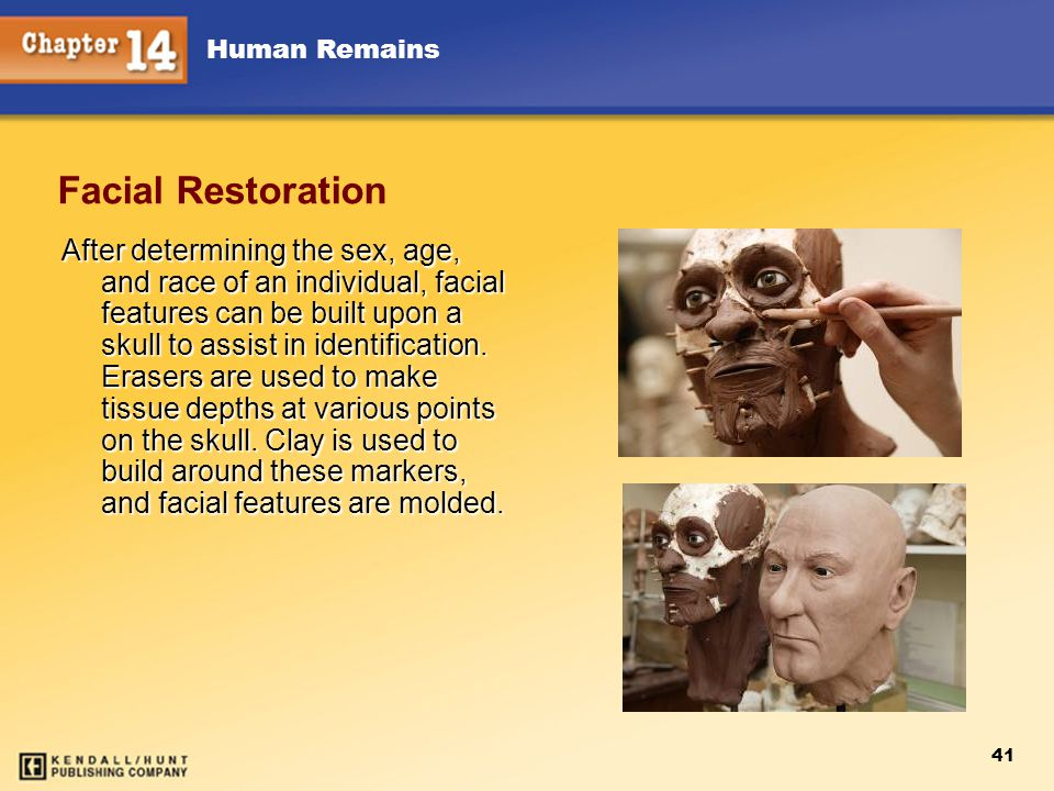 Human Remains 41 Facial Restoration After determining the sex, age, and race of an individual, facial features can be built upon a skull to assist in