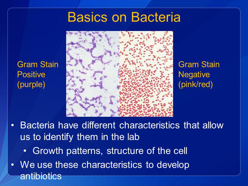 Basics on Bacteria Bacteria have different characteristics that allow us to identify them in the lab Growth patterns, structure of the cell We use the