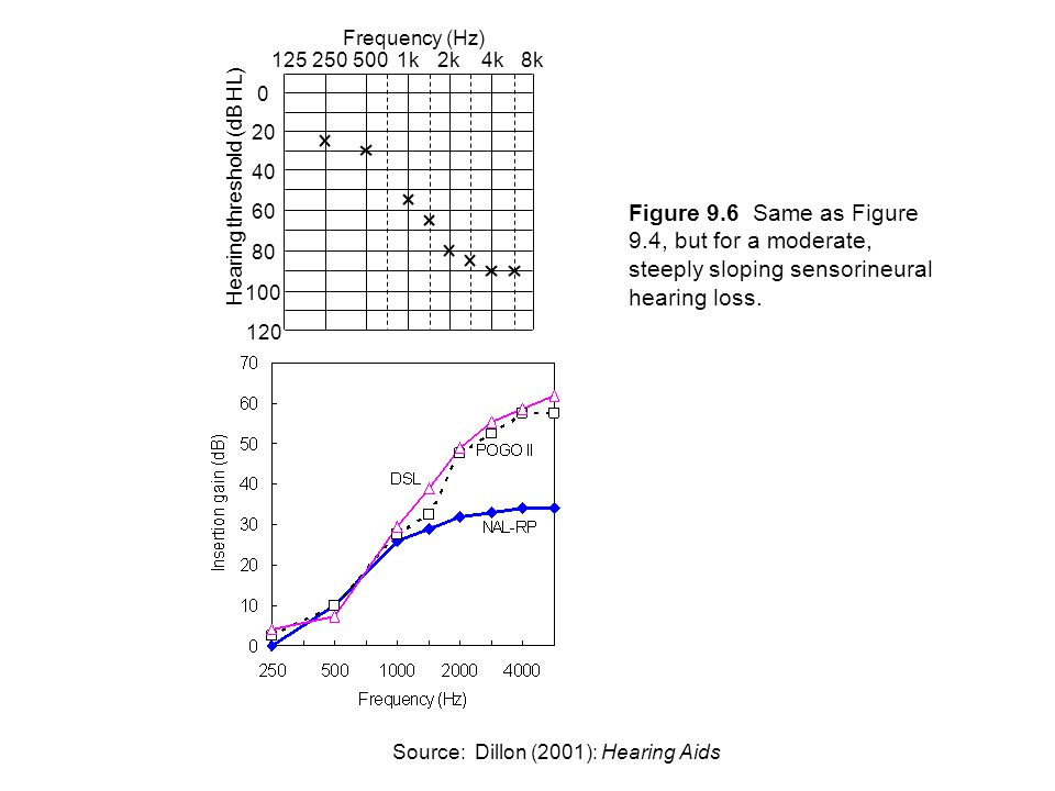 2501255001k2k4k8k 0 20 40 60 80 100 120 Frequency (Hz) Hearing threshold (dB HL) Figure 9.7 Same as Figure 9.4, but for a profound, gently sloping sensorineural hearing loss.