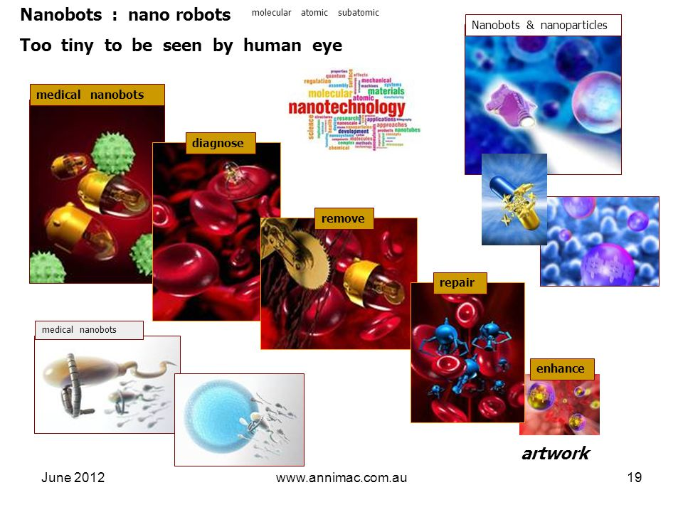 June 2012www.annimac.com.au19 medical nanobots Nanobots : nano robots Too tiny to be seen by human eye artwork medical nanobots molecular atomic subatomic Nanobots & nanoparticles diagnose remove repair enhance