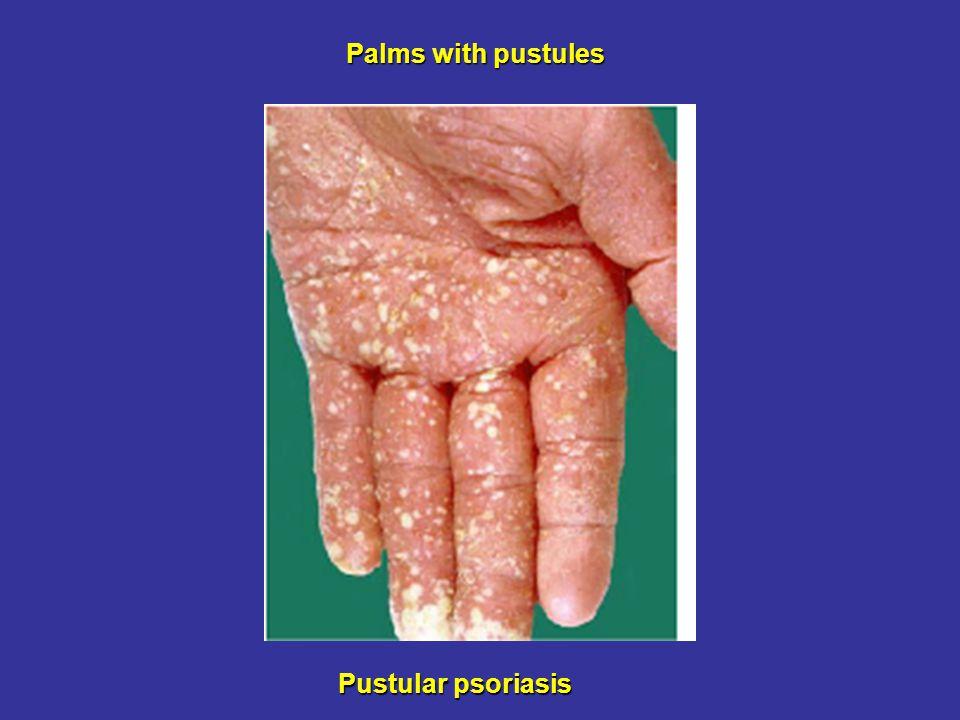 Palms with pustules Pustular psoriasis