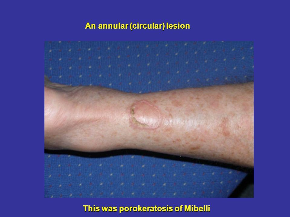 An annular (circular) lesion This was porokeratosis of Mibelli