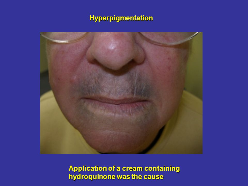 Hyperpigmentation Application of a cream containing hydroquinone was the cause