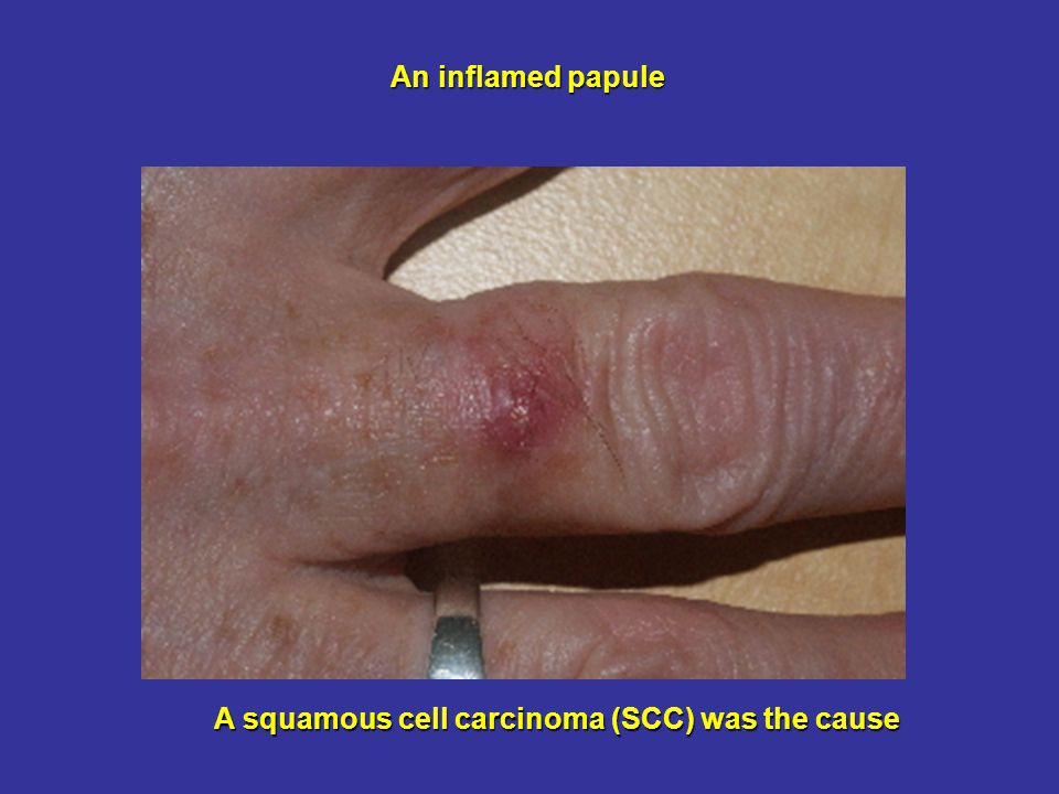 An inflamed papule A squamous cell carcinoma (SCC) was the cause