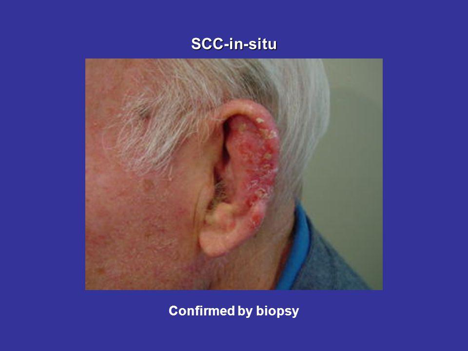 SCC-in-situ Confirmed by biopsy