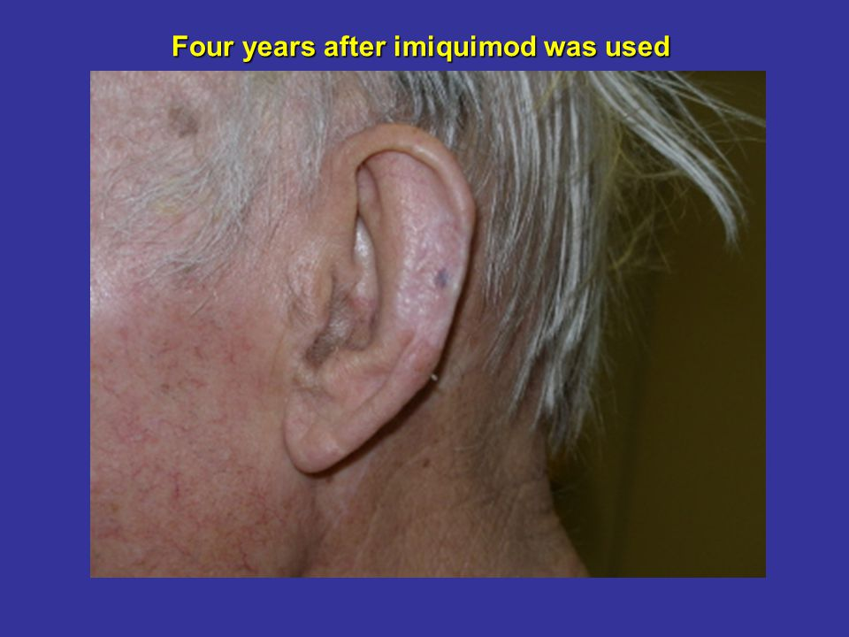 Four years after imiquimod was used