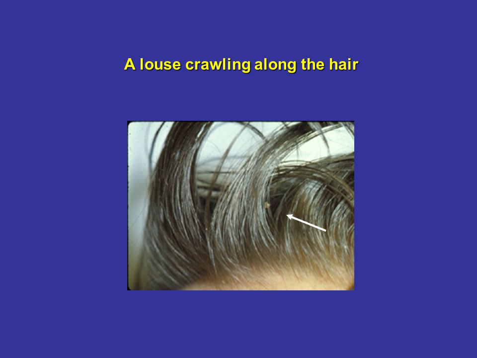 A louse crawling along the hair