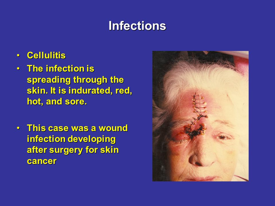 Infections ErysipelasErysipelas The infection is spreading through the outer layer of the skin.The infection is spreading through the outer layer of the skin.