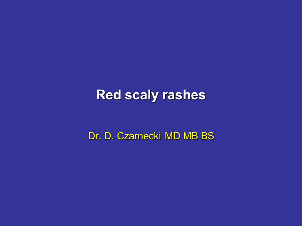 Red Scaly Rashes When someone presents with a red, scaly, itchy rashWhen someone presents with a red, scaly, itchy rash 1 Assume that he has dermatitis 2 Look for a raised edge 3 Look at the elbows and knees Dermatitis, psoriasis, or tinea are the most likely diagnoses for 90% of patients with red, scaly, itchy rashes.Dermatitis, psoriasis, or tinea are the most likely diagnoses for 90% of patients with red, scaly, itchy rashes.