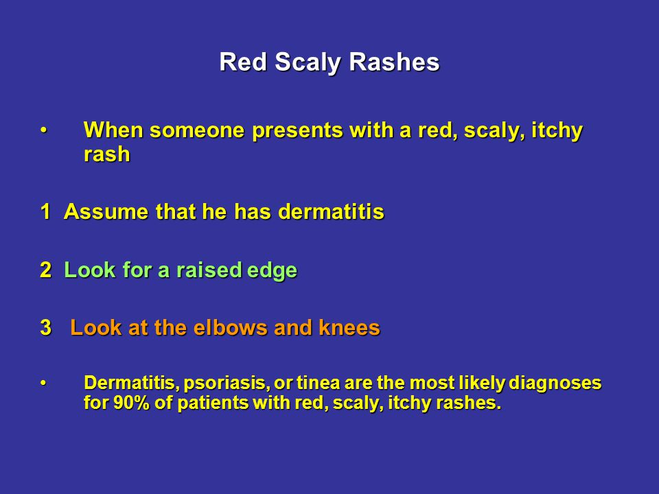 Red Scaly Rashes Scabies causes itch and scratching causes dermatitisScabies causes itch and scratching causes dermatitis Look for burrows on the hands (wrists and between the fingers)Look for burrows on the hands (wrists and between the fingers) Anyone else in the family itchy?Anyone else in the family itchy.