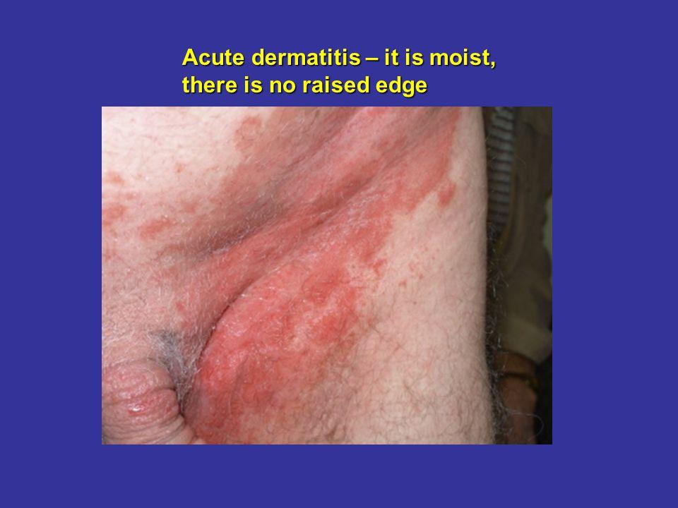 Acute dermatitis – it is moist, there is no raised edge