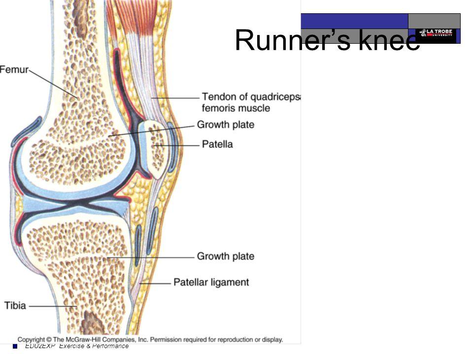 EDU2EXP Exercise & Performance Runner's knee