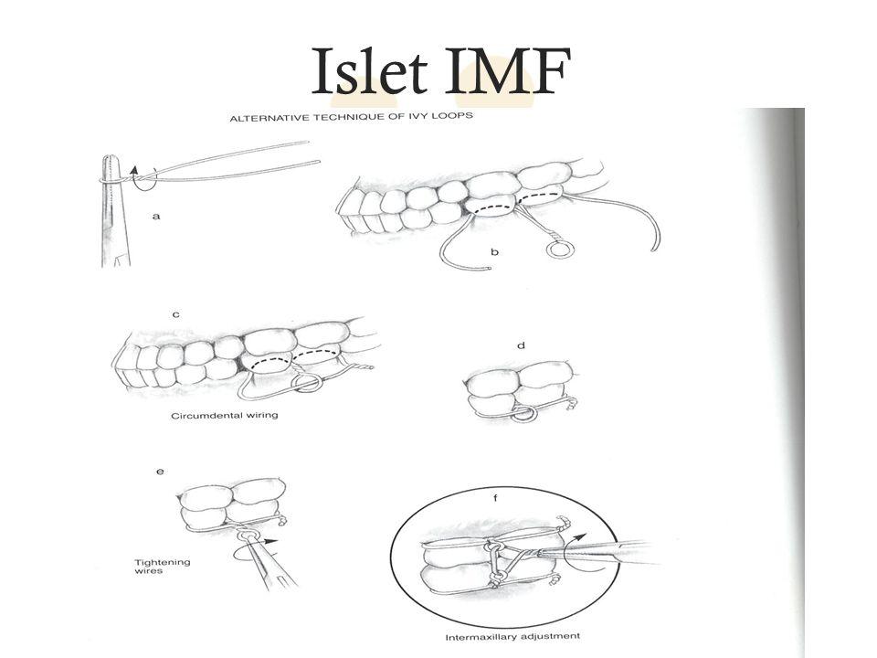 Islet IMF