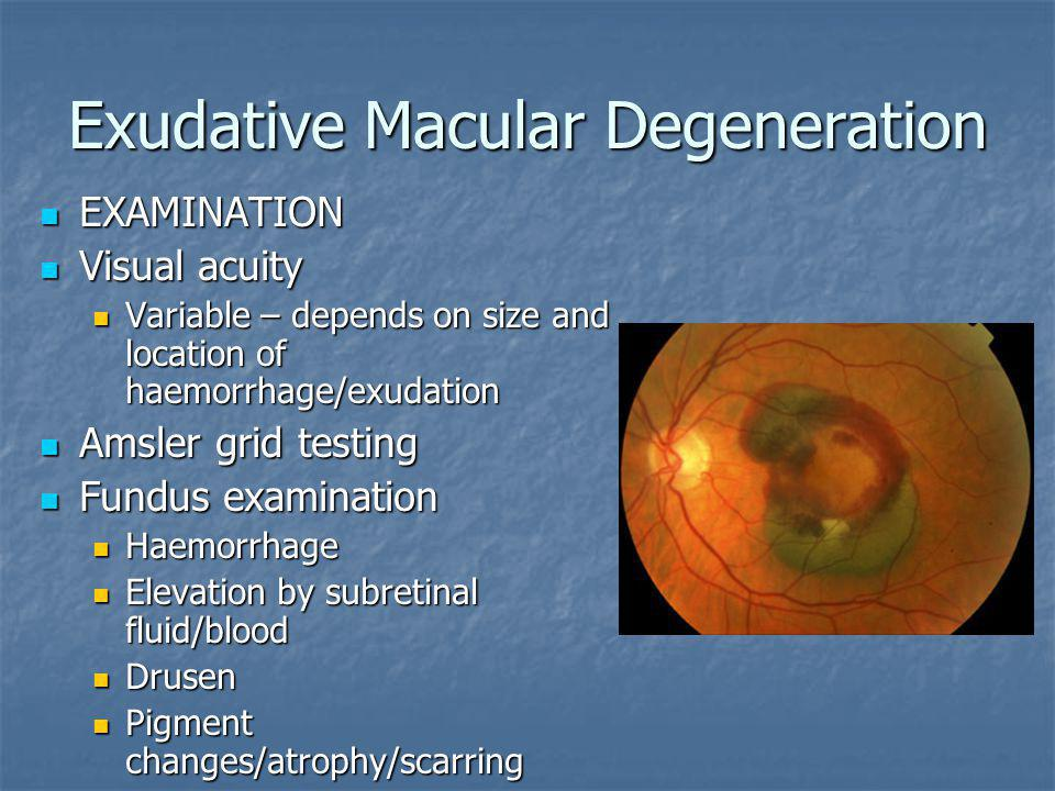 Exudative Macular Degeneration EXAMINATION EXAMINATION Visual acuity Visual acuity Variable – depends on size and location of haemorrhage/exudation Va
