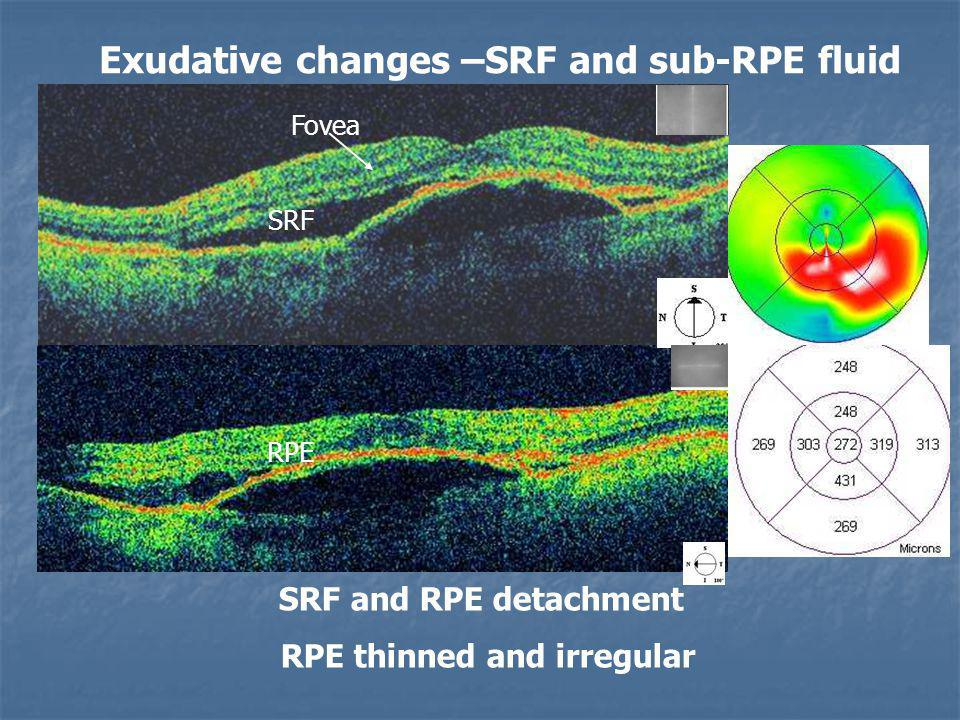 SRF and RPE detachment RPE thinned and irregular RPE SRF Exudative changes –SRF and sub-RPE fluid Fovea