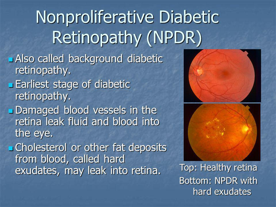 Nonproliferative Diabetic Retinopathy (NPDR) Also called background diabetic retinopathy. Also called background diabetic retinopathy. Earliest stage