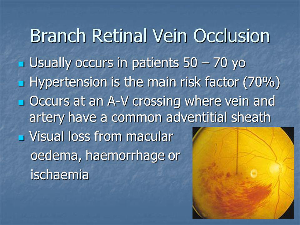 Branch Retinal Vein Occlusion Usually occurs in patients 50 – 70 yo Usually occurs in patients 50 – 70 yo Hypertension is the main risk factor (70%) H