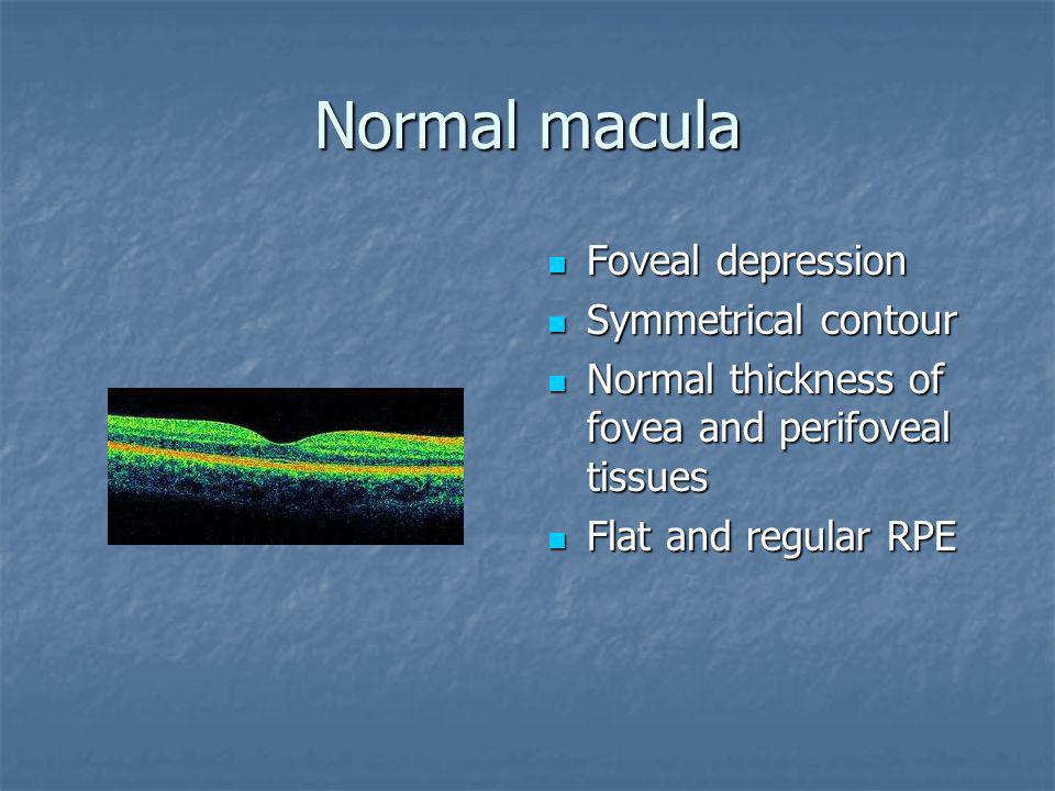 Normal macula Foveal depression Foveal depression Symmetrical contour Symmetrical contour Normal thickness of fovea and perifoveal tissues Normal thic
