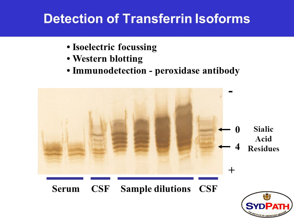 Detection of Transferrin Isoforms Isoelectric focussing Western blotting Immunodetection - peroxidase antibody 0 4 SerumCSFSample dilutionsCSF + - Sialic Acid Residues