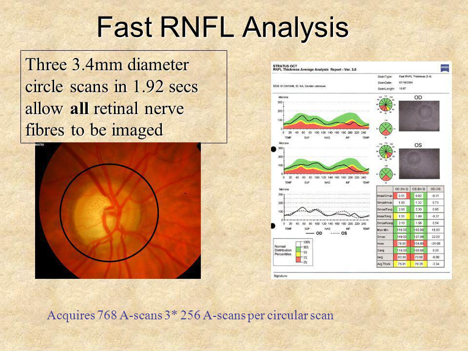 Fast RNFL Analysis Three 3.4mm diameter circle scans in 1.92 secs allow all retinal nerve fibres to be imaged Acquires 768 A-scans 3* 256 A-scans per