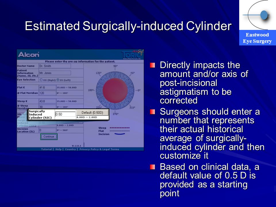 Eastwood Eye Surgery Estimated Surgically-induced Cylinder Directly impacts the amount and/or axis of post-incisional astigmatism to be corrected Surg