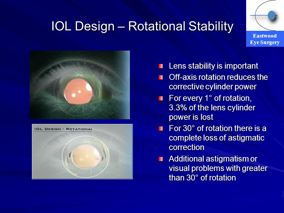 Eastwood Eye Surgery IOL Design – Rotational Stability Lens stability is important Off-axis rotation reduces the corrective cylinder power For every 1