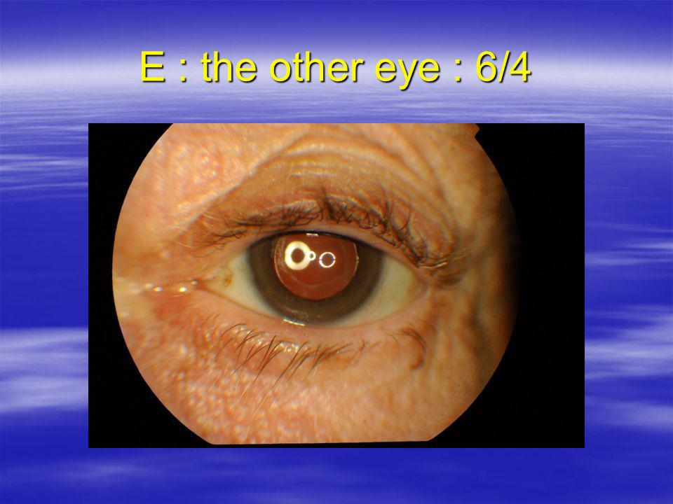 E : the other eye : 6/4