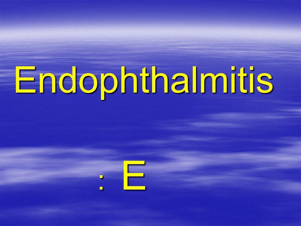 Endophthalmitis : E : E