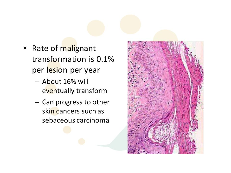 Rate of malignant transformation is 0.1% per lesion per year – About 16% will eventually transform – Can progress to other skin cancers such as sebaceous carcinoma