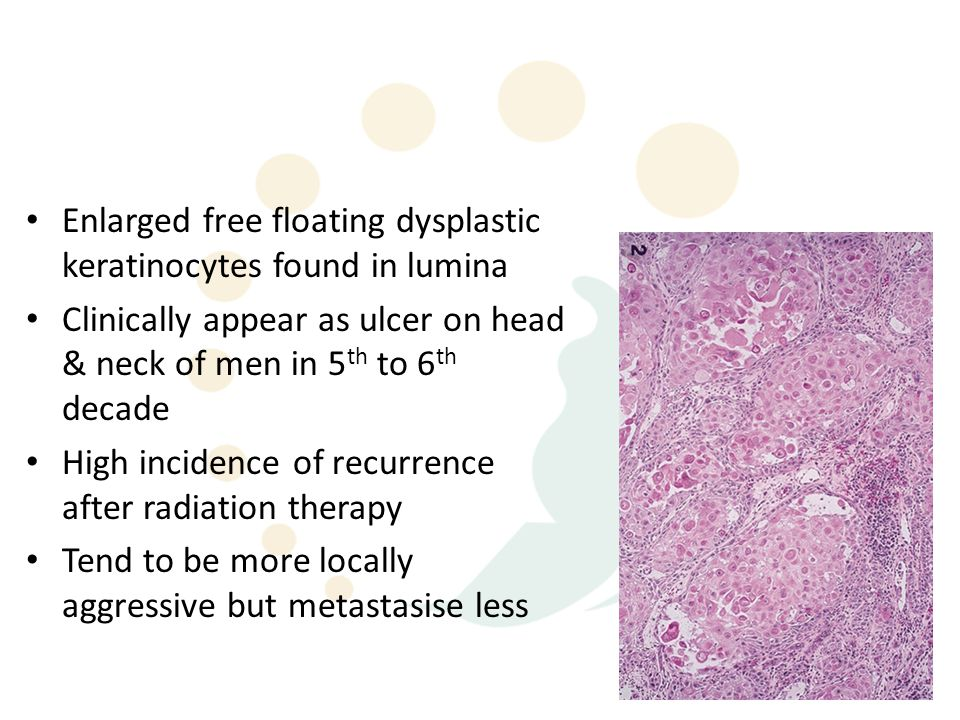 Enlarged free floating dysplastic keratinocytes found in lumina Clinically appear as ulcer on head & neck of men in 5 th to 6 th decade High incidence of recurrence after radiation therapy Tend to be more locally aggressive but metastasise less