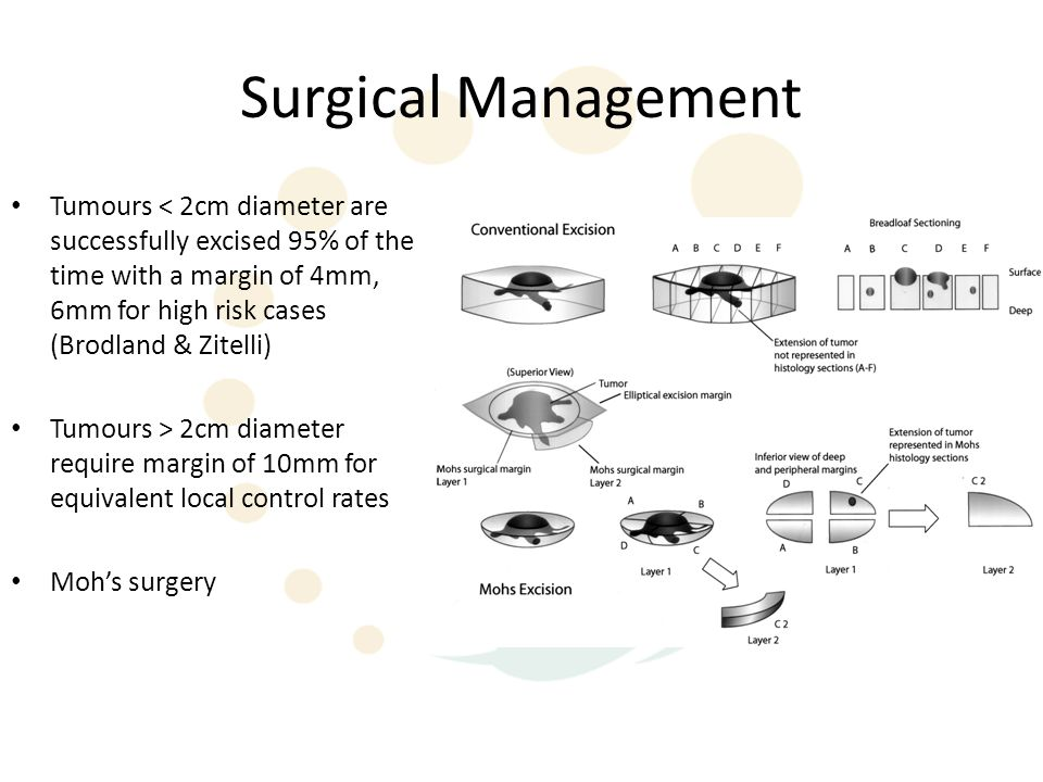 Surgical Management Tumours < 2cm diameter are successfully excised 95% of the time with a margin of 4mm, 6mm for high risk cases (Brodland & Zitelli) Tumours > 2cm diameter require margin of 10mm for equivalent local control rates Moh's surgery