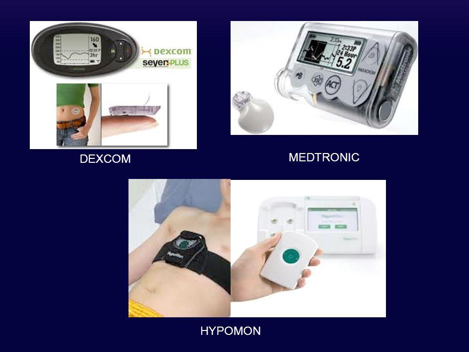 DEXCOM MEDTRONIC HYPOMON