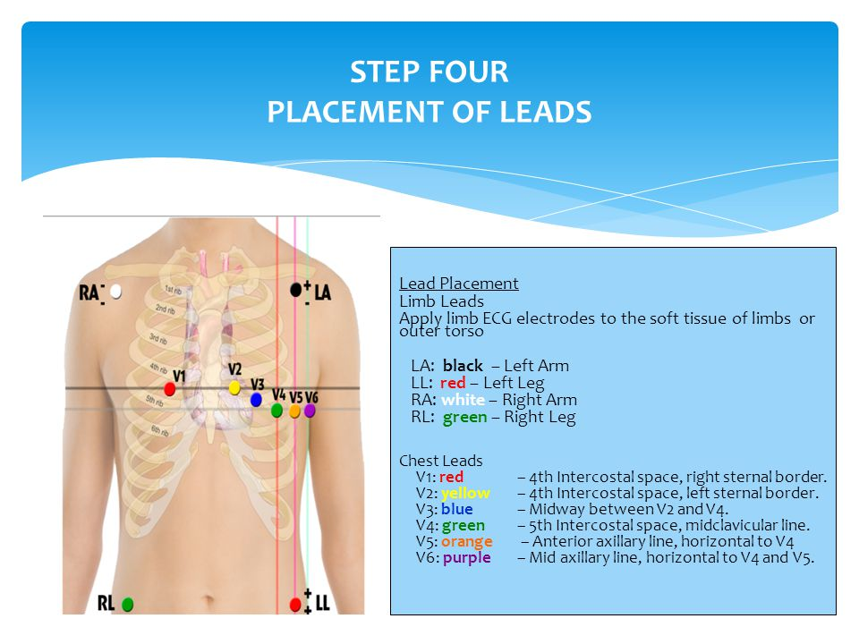 STEP FOUR PLACEMENT OF LEADS Lead Placement Limb Leads Apply limb ECG electrodes to the soft tissue of limbs or outer torso LA: black – Left Arm LL: red – Left Leg RA: white – Right Arm RL: green – Right Leg Chest Leads V1: red– 4th Intercostal space, right sternal border.