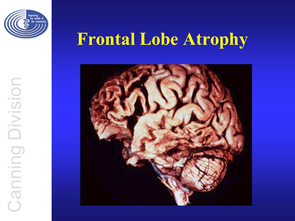 Canning Division Frontal Lobe Atrophy