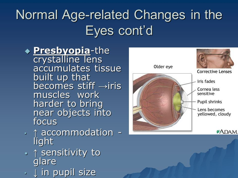 Normal Age-related Changes in the Eyes cont'd  Presbyopia-the crystalline lens accumulates tissue built up that becomes stiff → iris muscles work har
